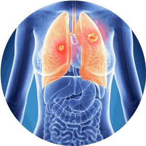 respiratorio-redondo-300x300